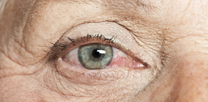 Qué es el síndrome del ojo seco?