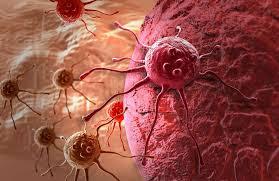 Qué es el cáncer