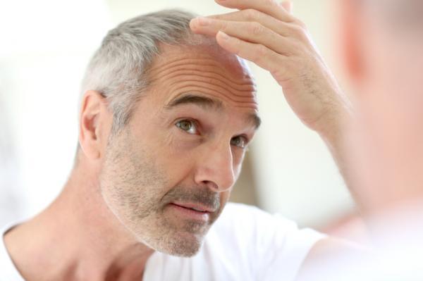 ¿Cuándo  el pelo se cae por estrés vuelve a crecer?